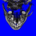 Inside Upper CT Scan of Impacted Teeth