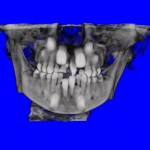 Frontal CT Scan of Impacted Teeth