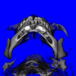 CT Scan Inside Lower Jaw