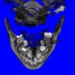 CT Scan Inside Upper Jaw